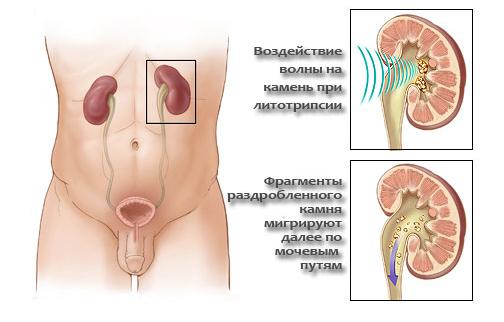 mogut-li-posle-seksa-bolet-pochki