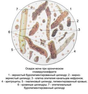 Осадок мочи при хроническом гломерулонефрите