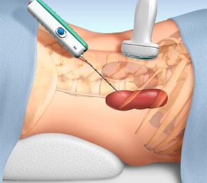 Проведение процедуры биопсии почки