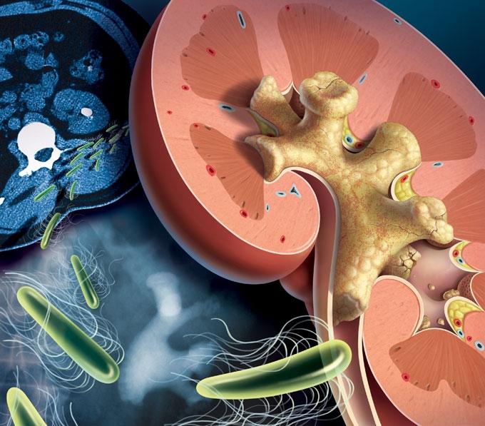 Коралловидные камни в почках: симптомы, лечение