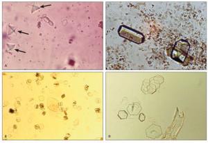 Как выглядят оксалатные камни под микроскопом