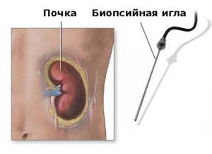 Процедура биопсии почки