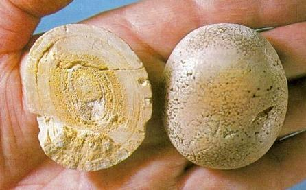 Уратные камни в почках: их растворение, причины образования