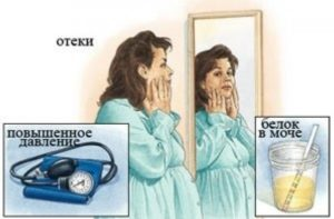 Классическая симптоматика заболевания