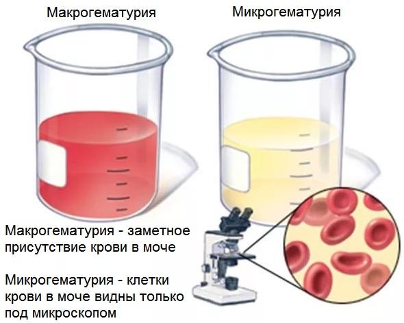 Отличия макро- и микрогематурии