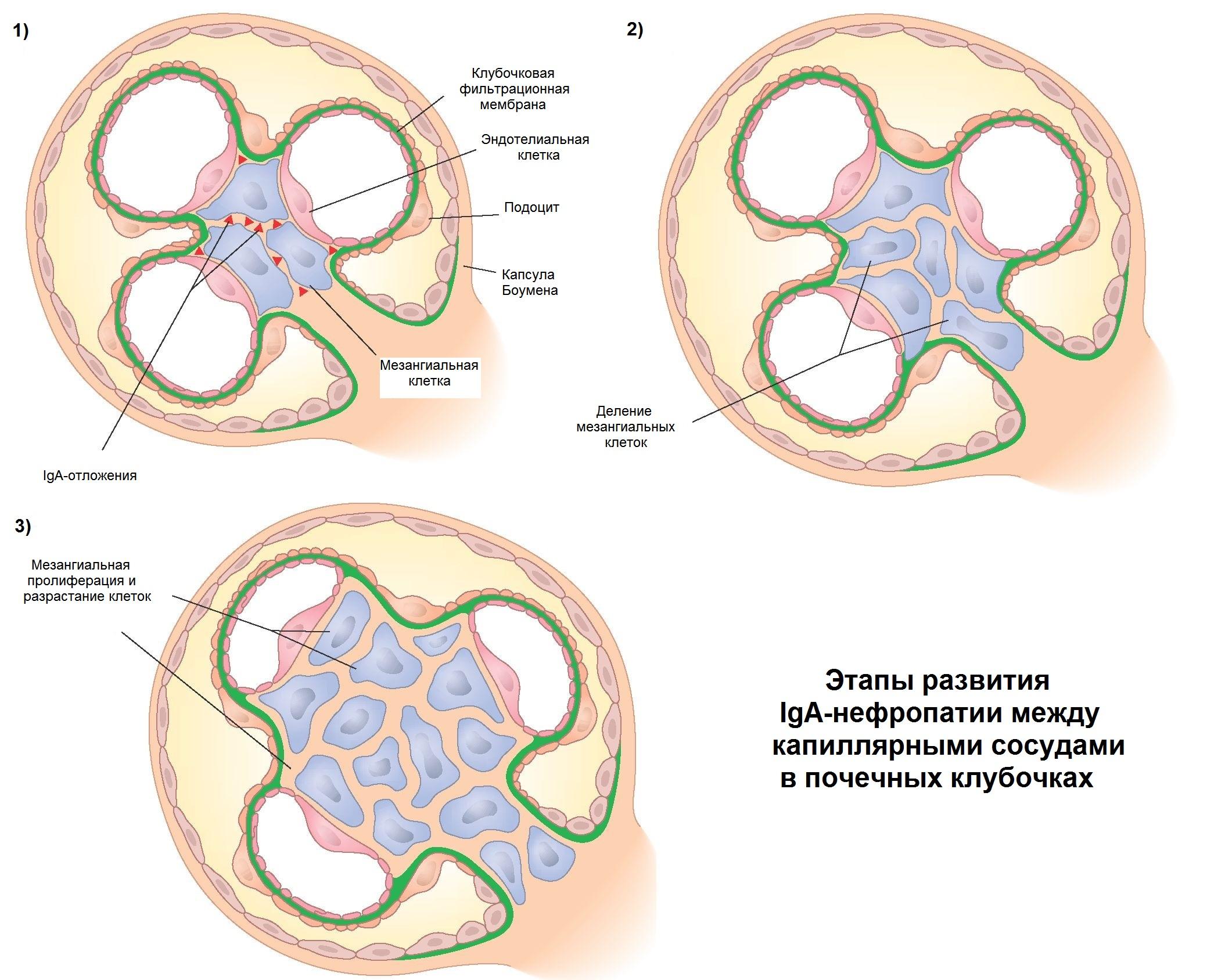 Этапы развития  IgA-нефропатии между  капиллярными сосудами в почечных клубочках