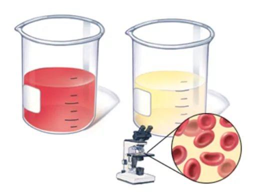 Разновидности гематурии: макро- и микрогематурия