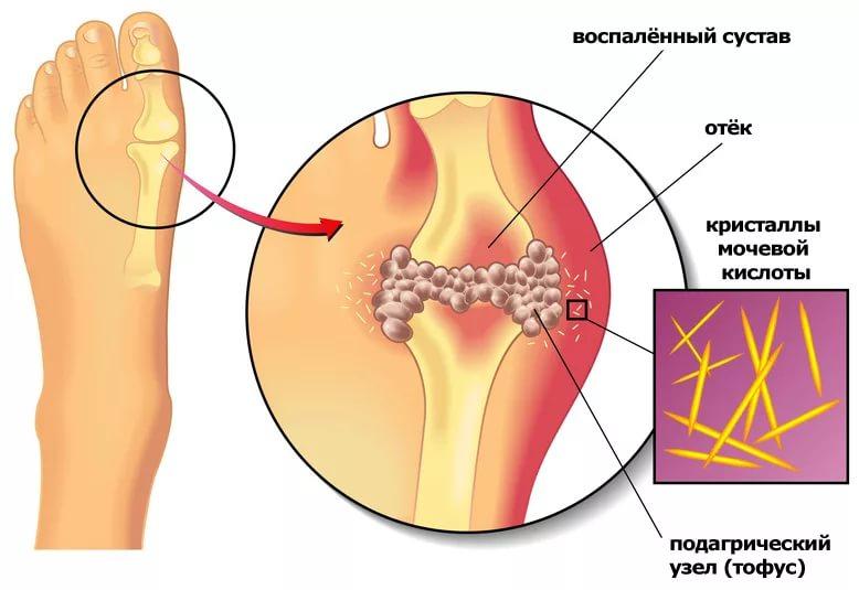 Поражение костных тканей при подагре