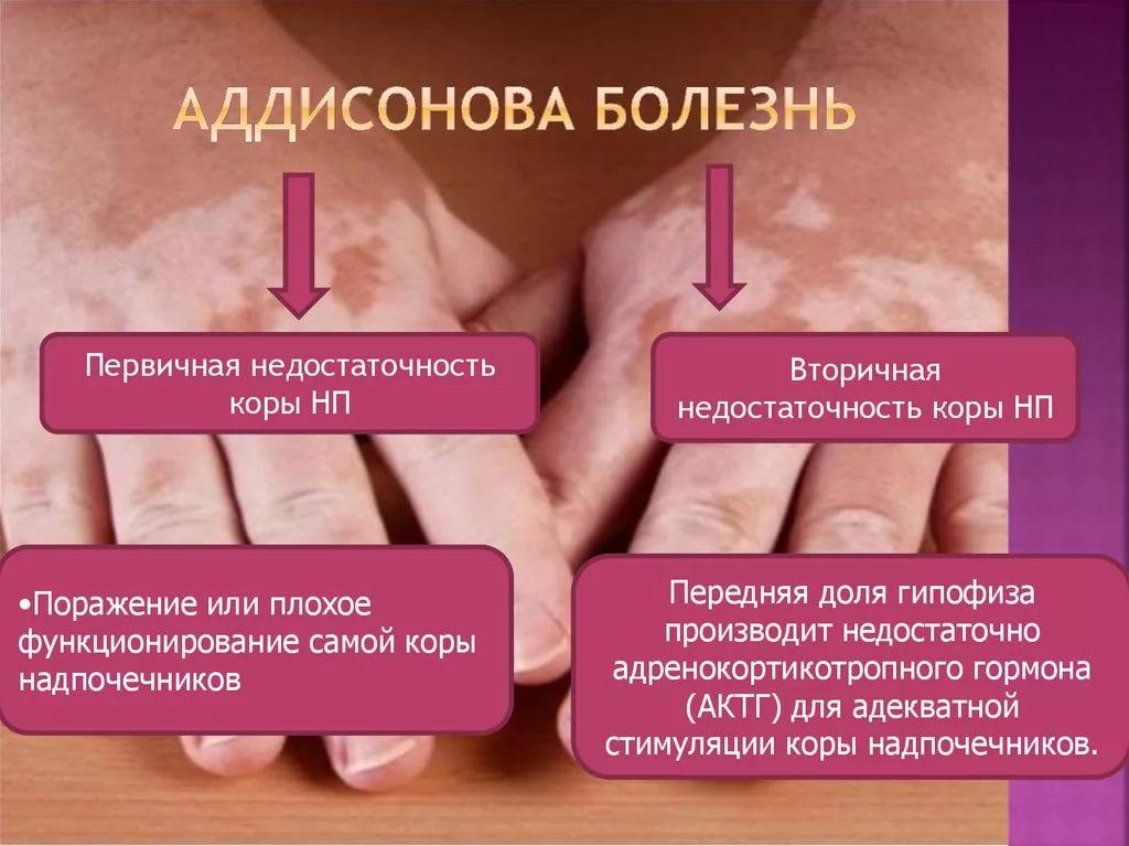 Инфографика о видах надпочечниковой недостаточности