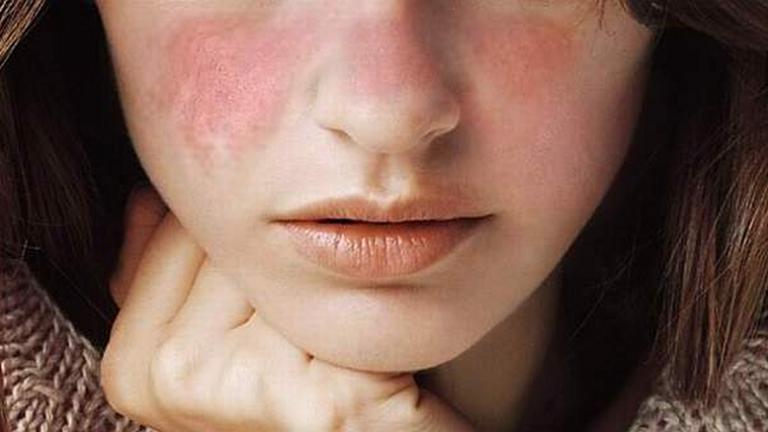 Девушка с красными высыпаниями на щеках