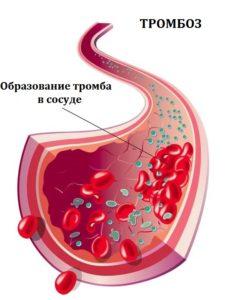 Сосуд в разрезе со схематичным изображением формирования тромба